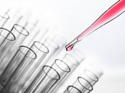 Método e Kit para Diagnóstico de Condições Neuropsiquiátricas, Método para Avaliação de Tratamentos de Condições Neuropsiquiátricas e Método de Identificação de Fármacos Potencialmente Úteis no Tratamento de Condições Neuropsiquiátricas